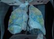 فيديو يكشف تلف رئة مريض مصاب بفايرس كورونا